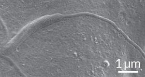 Spermatozoi più antichi al mondo da un verme sconosciuto: hanno 50mln di anni