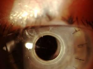 Occhio bionico impiantato ad anziano con maculopatia: primo intervento al mondo
