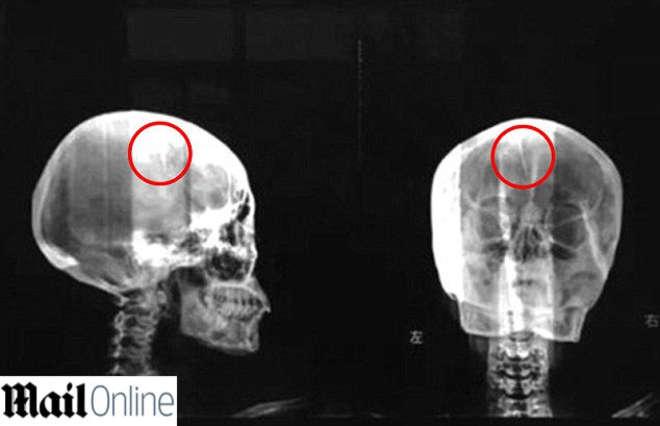 Mal di testa da 40 anni: le trovano un ago nel cranio