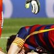 Leo Messi lesione al ginocchio: fuori due mesi 3
