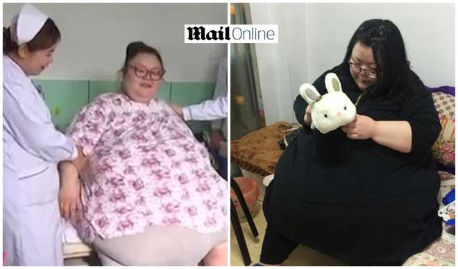 Qian Qian, la donna che pesa 242 chili FOTO