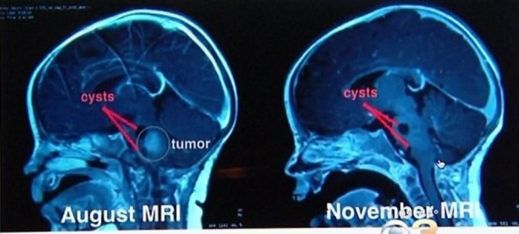 Papa bacia bimba malata. Radiografia: tumore più piccolo