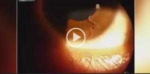 Ha qualcosa nell'occhio: va dall'oculista e scopre...