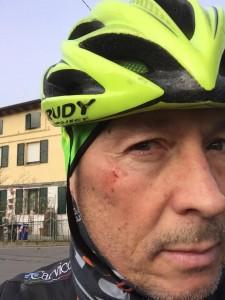 Guarda la versione ingrandita di Paolo Belli ferito in bici da auto pirata a Carpi (foto da Facebook)