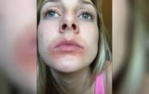 Labbra rovinate: bufera su Eos Lip Balm, burro cacao vip
