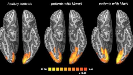 Emicrania, foto cervello durante mal di testa: cosa accade 02