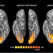 Emicrania, foto cervello durante mal di testa: cosa accade 01
