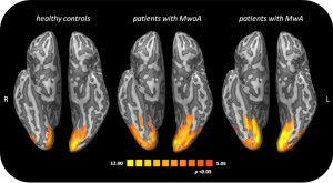 Guarda la versione ingrandita di Emicrania, foto cervello durante mal di testa: cosa accade