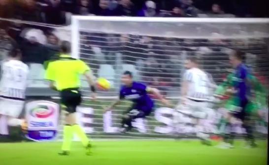 Juventus - Inter, il tocco con la mano di Medel