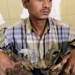 YOUTUBE Uomo-albero: 5 chili di 'verruche-radici' sul corpo 4