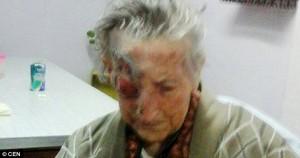 Vermi in occhio anziana: le avevano dato farmaci per cani