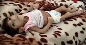 Un bambino scheletrito a Madaya