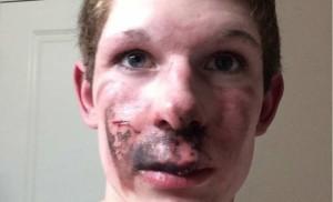Sigaretta elettronica esplode e gli fa cadere tutti i denti