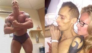 Dean Wharmby, prima e dopo la malattia (foto Facebook)
