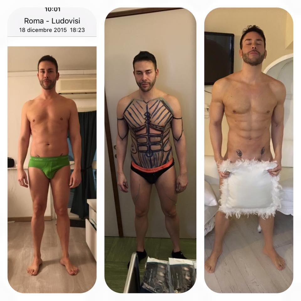 Giacomo Urtis, intervento estetico FOTO prima e dopo (4)