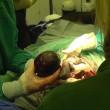 Ginecologo fa partorire gorilla col cesareo7