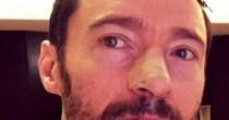 Hugh Jackman, quinta operazione per un cancro della pelle