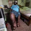 India, l'uomo con la gamba che pesa 100 chili 4