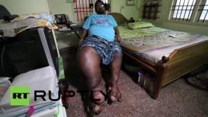 India, l'uomo con la gamba che pesa 100 chili