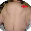 Gobba sulla schiena e tumori sul corpo: colpa dell'alcol