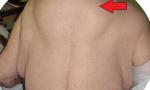 Gobba schiena e tumori sul corpo: colpa di alcolici FOTO