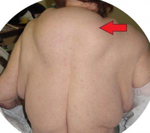 Guarda la versione ingrandita di Gobba schiena e tumori sul corpo: colpa di alcolici FOTO