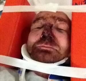 Veterano di guerra inglese pestato dalla fidanzata ubriaca3