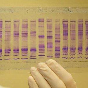 Guarda la versione ingrandita di Tumori scoperti da goccia di saliva: risultati in 10 minuti