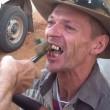 YOUTUBE Dentista improvvisato con pinze, scalpello e cartone