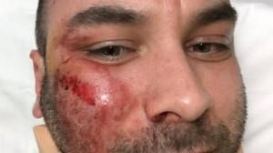 Denuncia rom che gli defeca in casa: pestato a sangue