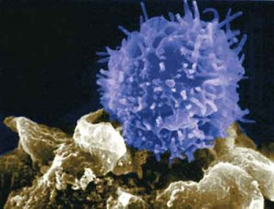 Tumori sangue, trattamento italiano per sconfiggere leucemia
