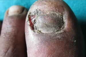 VIDEO YOUTUBE Medico raschia col bisturi unghia infetta e…
