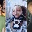 Sfigurata dopo l'incidente e vittima dei bulli, anni dopo si prende la sua rivincita 02