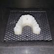Apparecchio denti con stampante 3D Prezzo 50 euro3