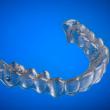 Apparecchio denti con stampante 3D Prezzo 50 euro7