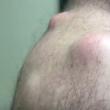 YOUTUBE Ciste sulla schiena operata: ecco cosa viene fuori