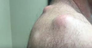 YOUTUBE Ciste sulla schiena operata: ecco cosa viene fuori 7