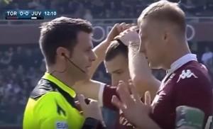 Torino-Juventus, la simulazione di Lichtsteiner. E la reazione di Glik