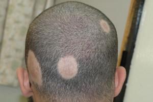 Calvizie, un farmaco fa ricrescere i capelli
