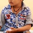 YOUTUBE Analgesia congenita: fratelli si mangiano dita ma...2