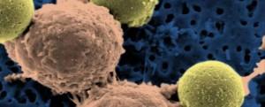 Tumori, da immunoterapia nuovo, rivoluzionario, trattamento