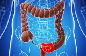 Cancro colon retto il più cattivo: 52mila casi nel 2015