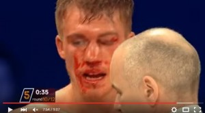 YOUTUBE Nick Blackwell, pugile in coma dopo ko sul ring