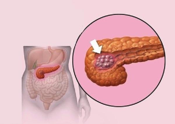 Tumore pancreas, sono quattro: se lo sbagli sbagli cura