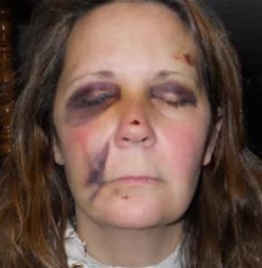 Una donna picchiata