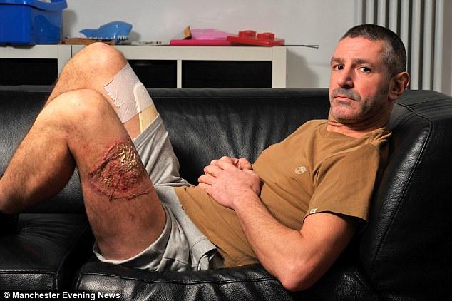 Sigaretta elettronica esplode gamba e mano ridotti così FOTO 5