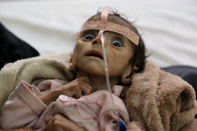 Udai Faisal, bimbo 5 mesi morto di fame in Yemen. FOTO choc01