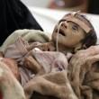Udai Faisal, bimbo 5 mesi morto di fame in Yemen. FOTO choc06