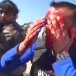 YOUTUBE Reporter colpito da schegge granata in diretta tv 02