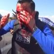 YOUTUBE Reporter colpito da schegge granata in diretta tv 03